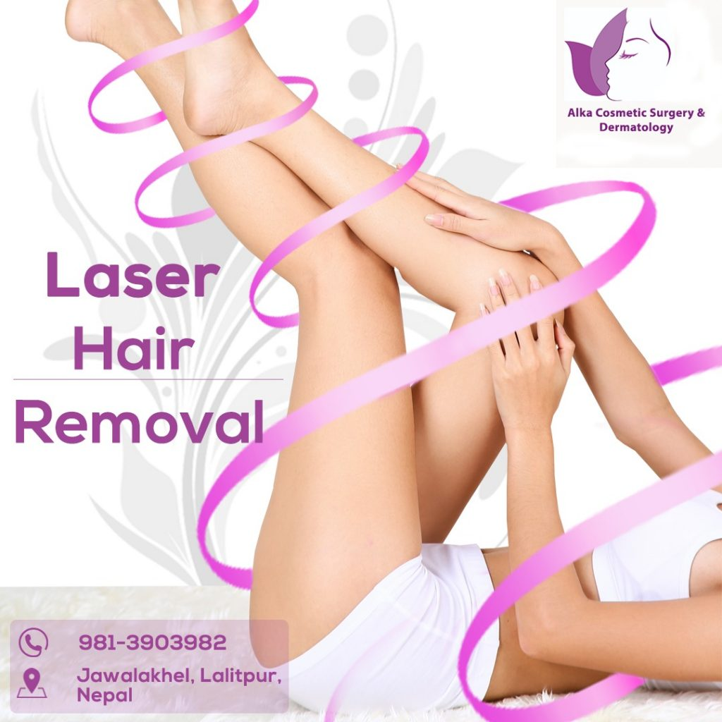 A woman who did laser hair removal.