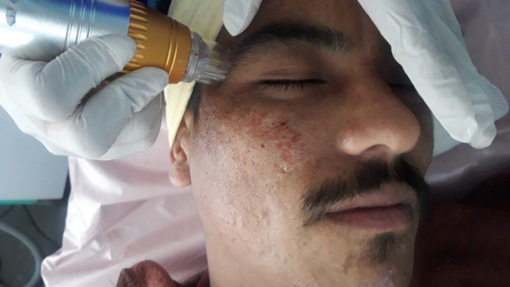 Acne Scar Treatment in Nepal