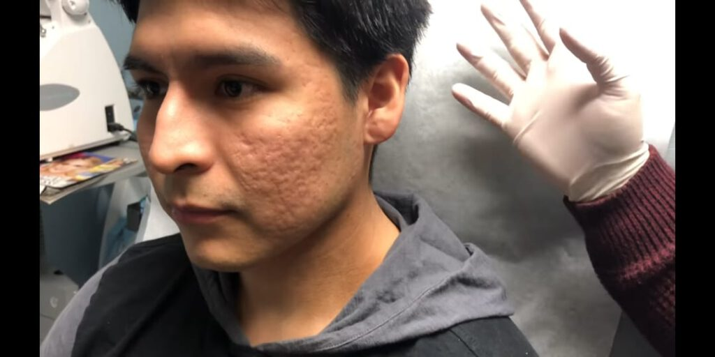 Acne Scar Treatment Procedures in Nepal