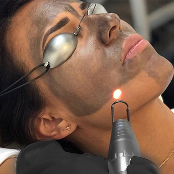 charcoal laser facial in Nepal