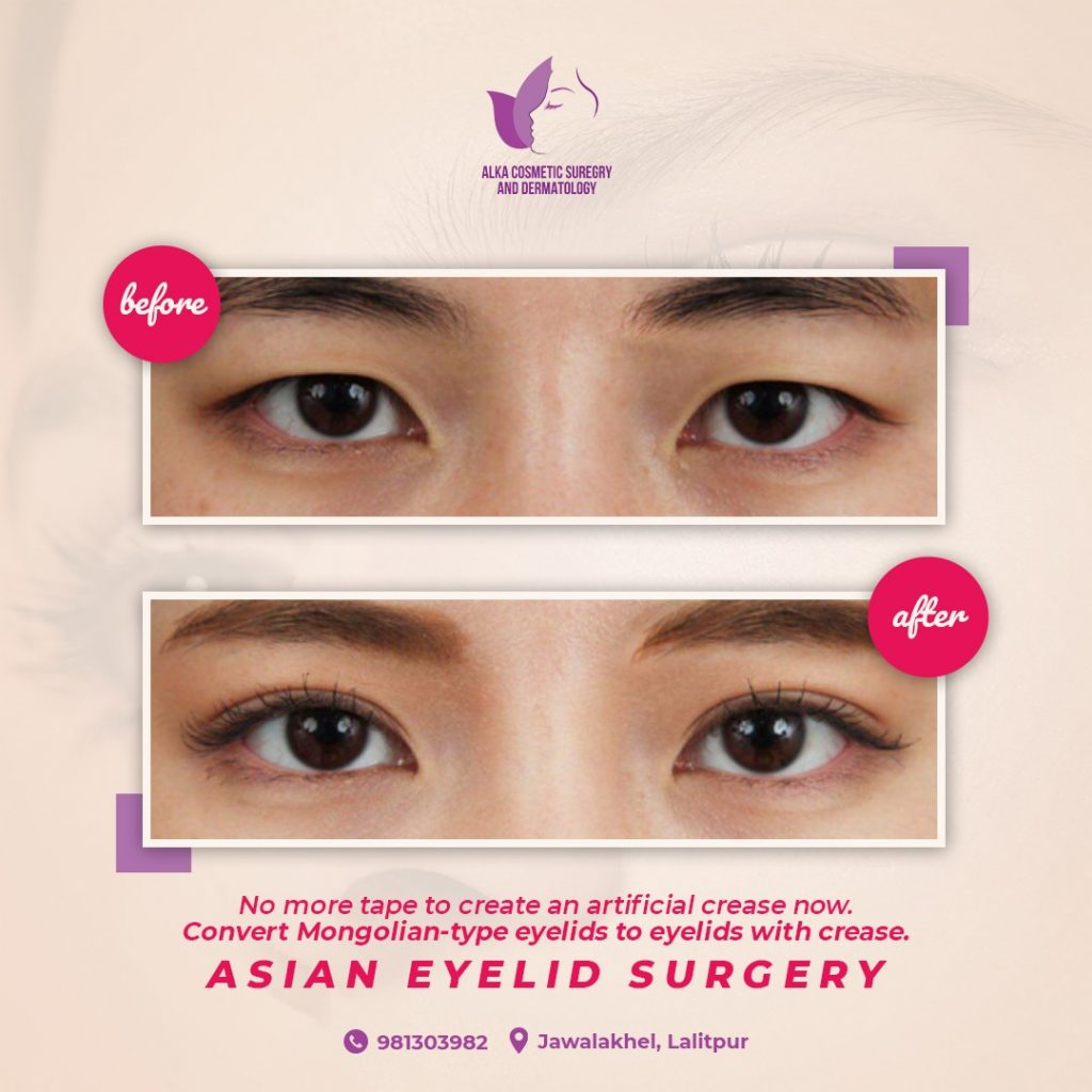Asian Eyelid Surgery in Kathmandu, Nepal
