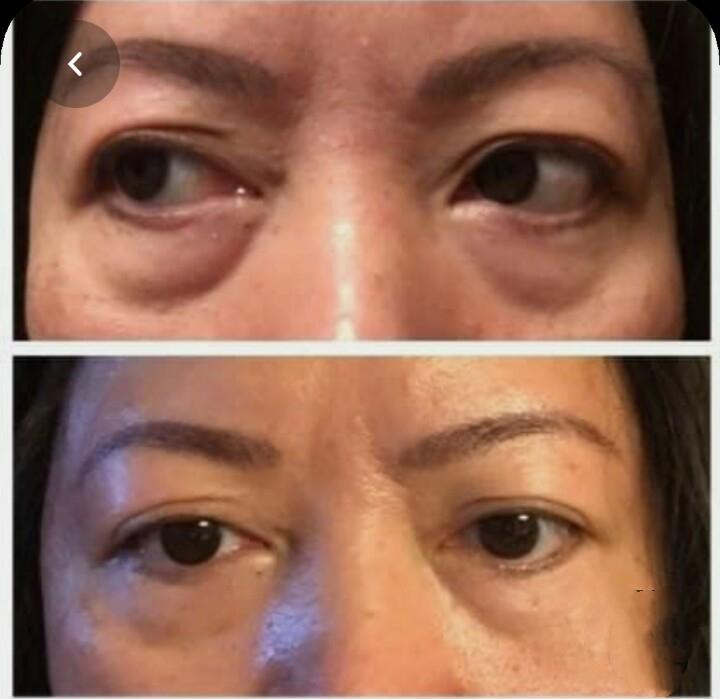 Lower Eyelid Lower Eyelid Blepharoplasty